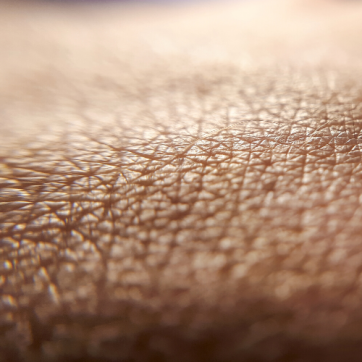 How Diabetes Can Affect Your Skin
